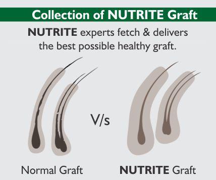 Nutrite-template-3