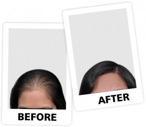 nt Hair fall 1