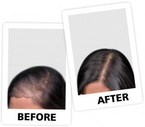 nt Hair fall 2