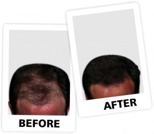 nt Hair fall 3