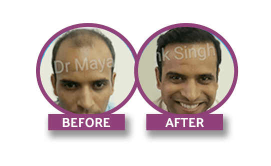 nordic cosmetic laser clinic