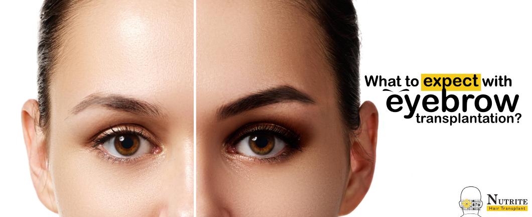 eyebrow transplantation in Mumbai