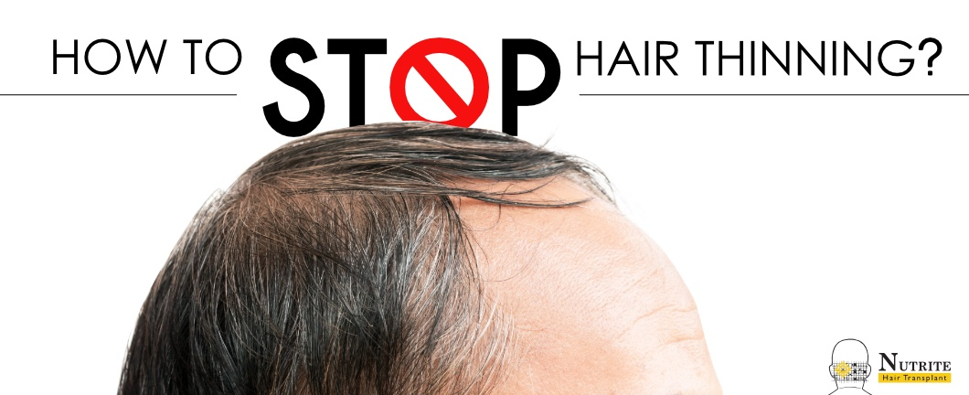 hair loss treatment in Mumbai