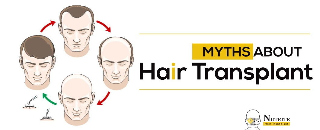 hair replacement in Mumbai