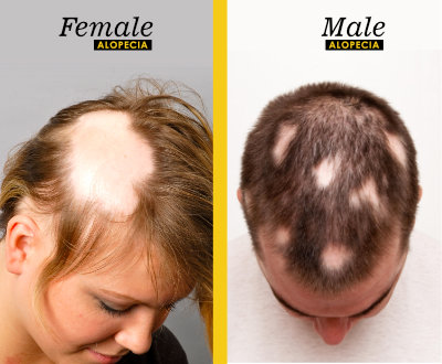 Male Female Alopecia